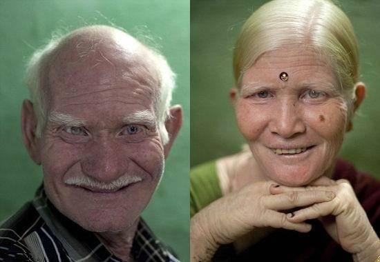 印度奇事,一家人都患有白化病,因此被列入吉尼斯纪录(1)