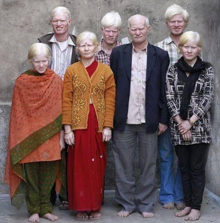 印度奇事,一家人都患有白化病,因此被列入吉尼斯纪录(3)