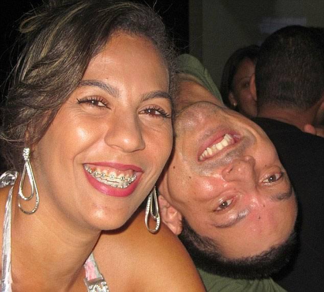 巴西男子只能倒着看人,但凭着信念成了一名会计师和演说家(2)